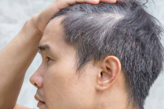 How to prevent premature greying of hair?